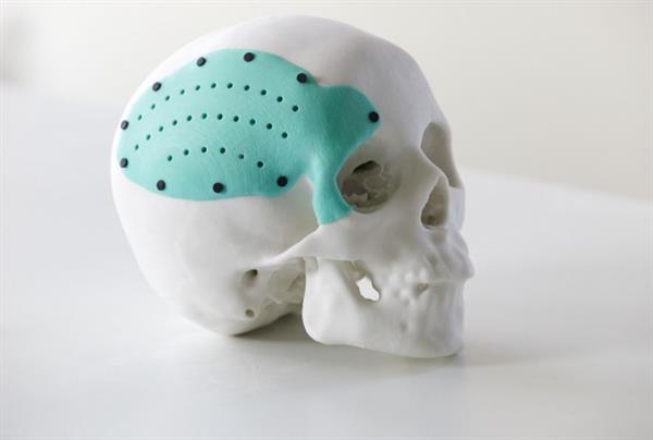 3d printing applications in medicine